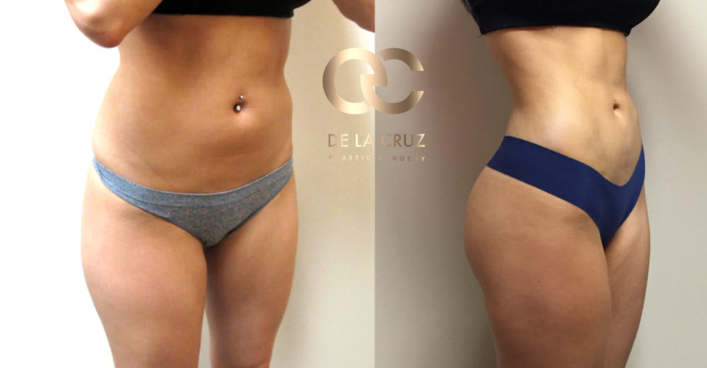 Figure 4:  Before & After Photos of 4 D VASER High-Definition Liposculpture with Fat Transfer to the Buttock (1 year after Surgery.)  Surgery was performed by Dr. Emmanuel De La Cruz, a Houston Plastic Surgeon.