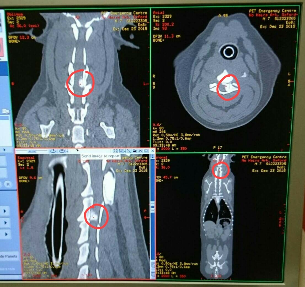 Oxford's CT scans - we have circled the problematic herniation.