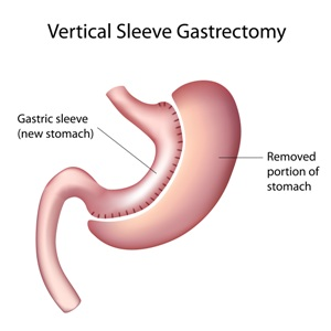 gastric-sleeve-surgery-transparent cropped.PNG
