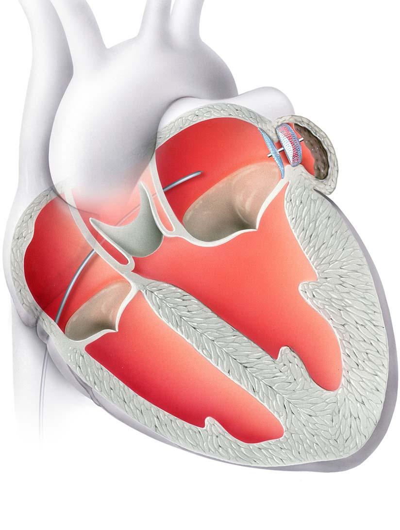 5-4-Rhythmusstoerung-Herzohrverschluss.jpg