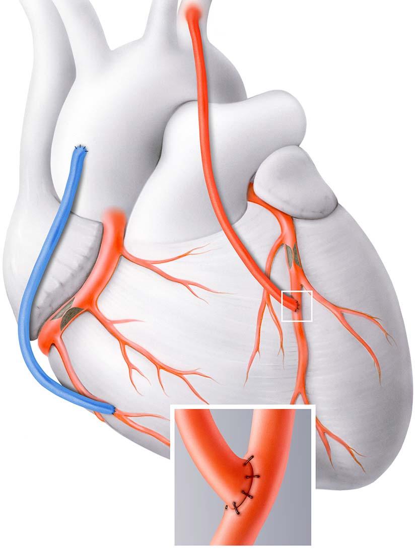 Bypass-Operation (Herzchirurgie) - Herzklinik Hirslanden Zürich