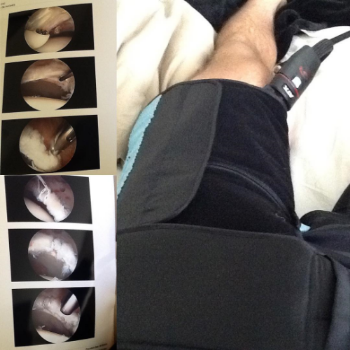 The images on the left were taken inside my hip during operation.  On the right, the image shows my hip wrapped with the Game Ready Machine.
