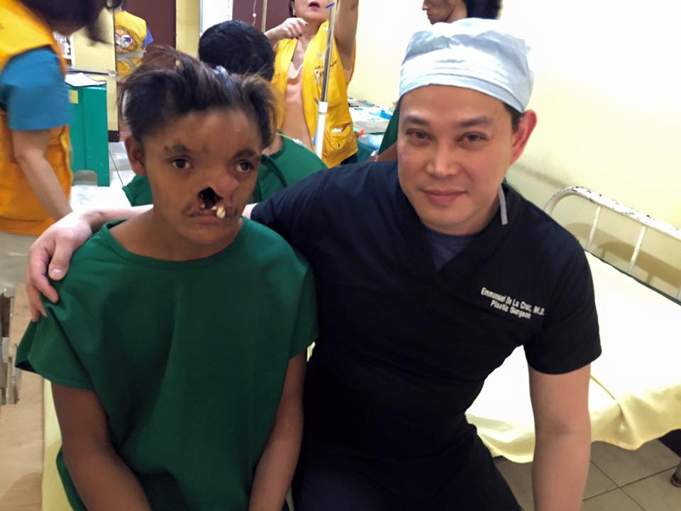He cried when I told him that we'll do his surgery.  He was denied three times by multiple organizations and hospitals, including Operation Smile, due to the complexity of his case.  Repairing his complex cleft lip was priceless!
