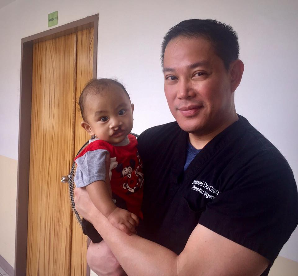 Four Month Old Baby with Bilateral Cleft Lip.  Dr. De La Cruz and his team performed his surgery during this medical mission trip on February 2017.