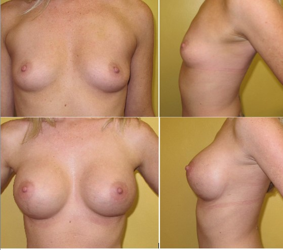 Breast augmentation with silicone implants performed by Dr. De La Cruz.