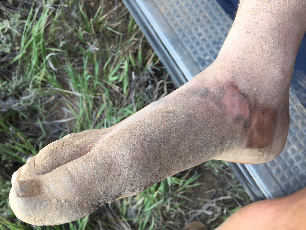 Dirt caked, bloody, sweaty, salty, and in pain these were my feet after the Bryce Canyon 100 and I only healed them through diligence.