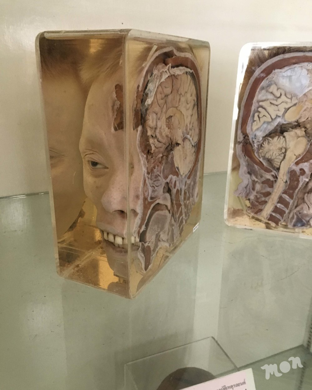 Cross Sectioned Head