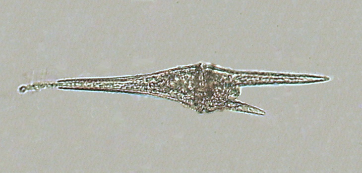 Ceratium furca, a dinoflagellate. By Minami Himemiya - Own work, CC BY-SA 3.0, https://commons.wikimedia.org/w/index.php?curid=4975413