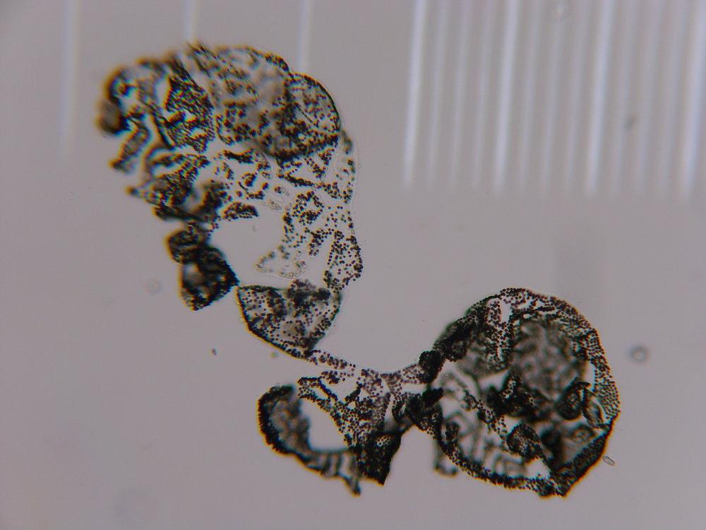 cyanobacteria.JPG
