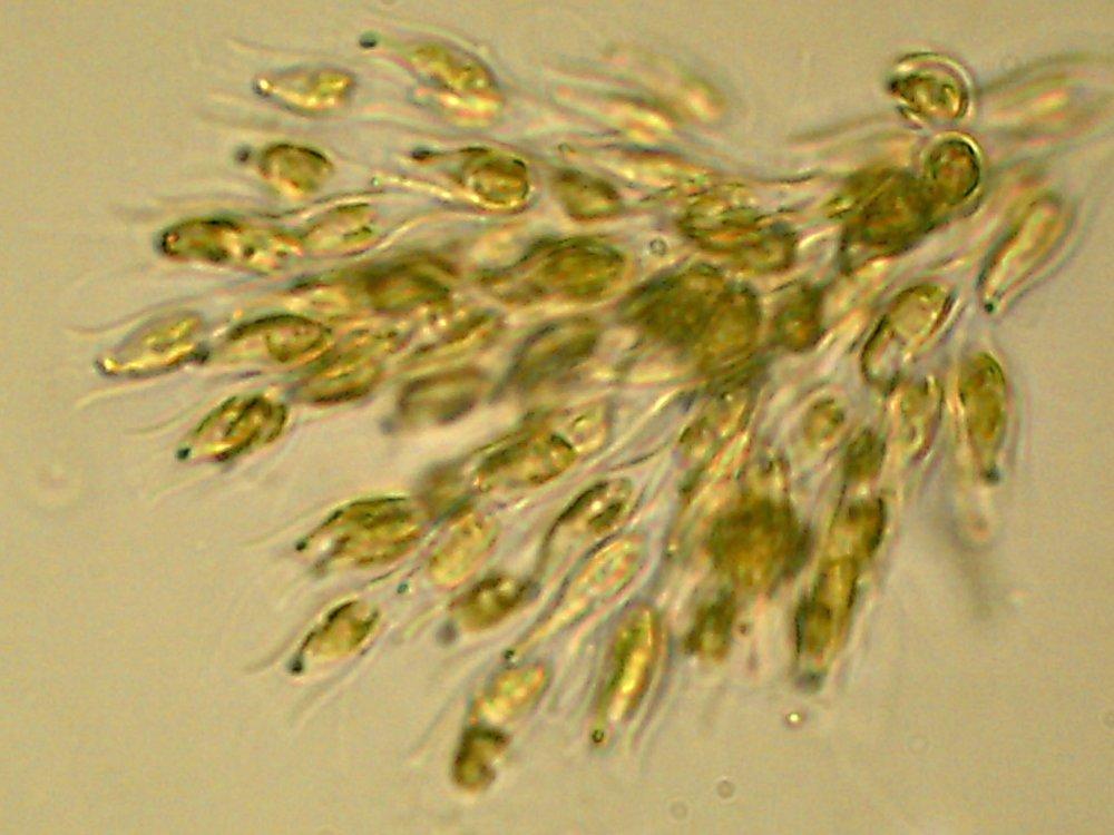 Dinobryon-diatoms.JPG