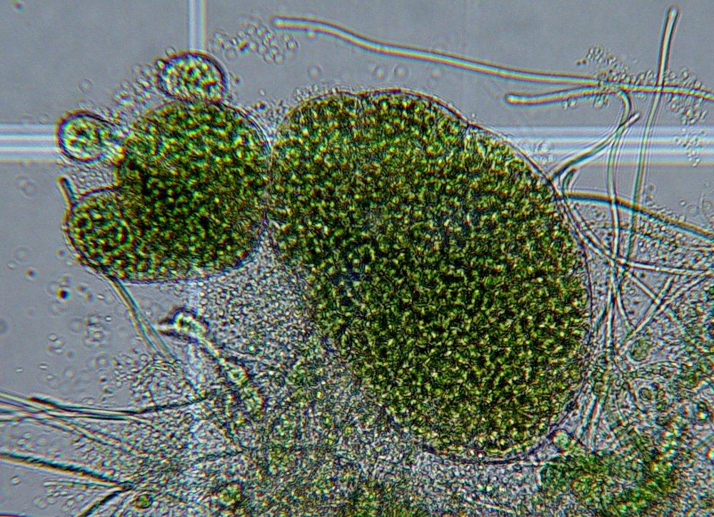 microscopic-cyanobacteria.jpg