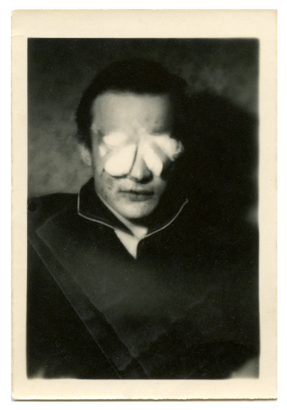 Strange snapshot of a man with bandaged eyes.