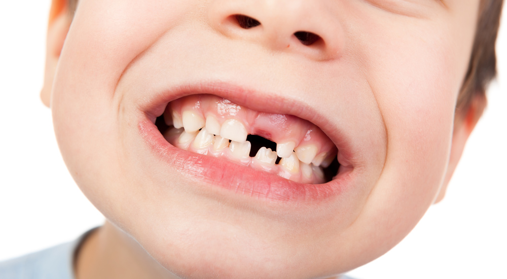 Smiling child at Dr. Amy Pediatric Dentistry