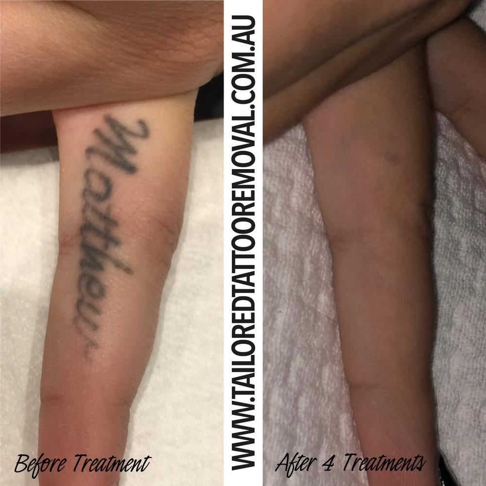 tattoo_removal_fotona-laura-finish.jpg