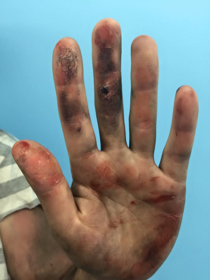 burns to hands from house fire