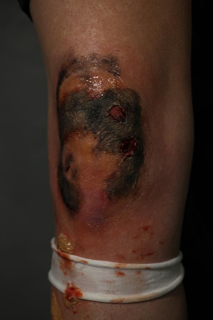 Burn to knee