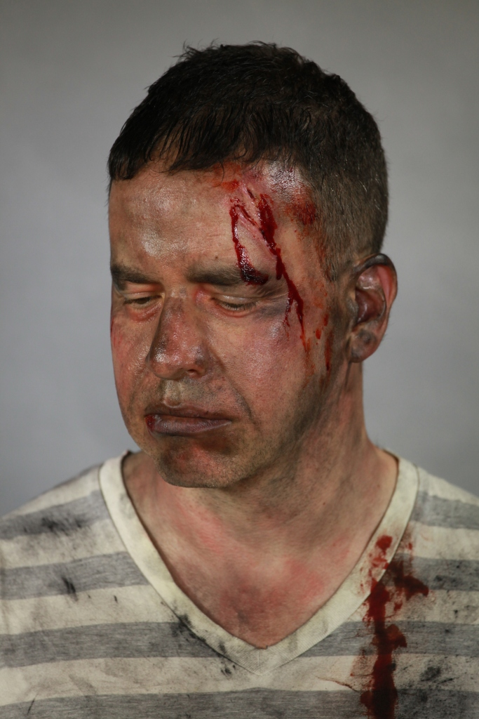 Burns victim character work