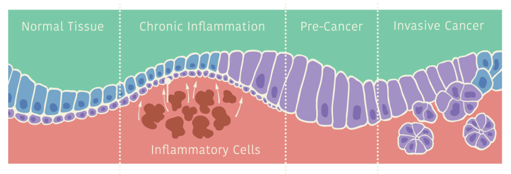 PROGRESSIVE DEVELOPMENT OF CANCER CELLS