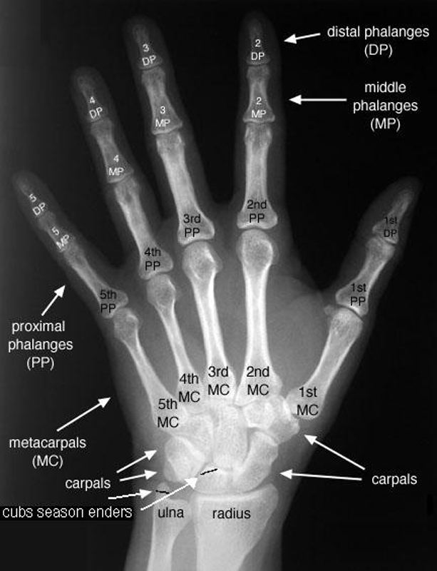 Dexter Sinister, Broken Hand Xray
