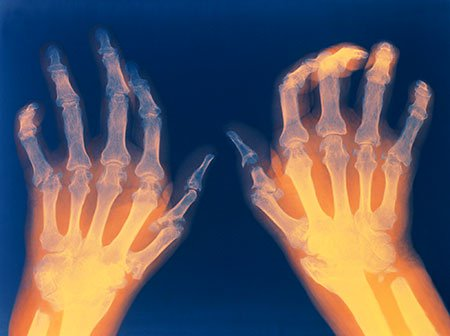 rheumatoid-arthritis-hands.jpg