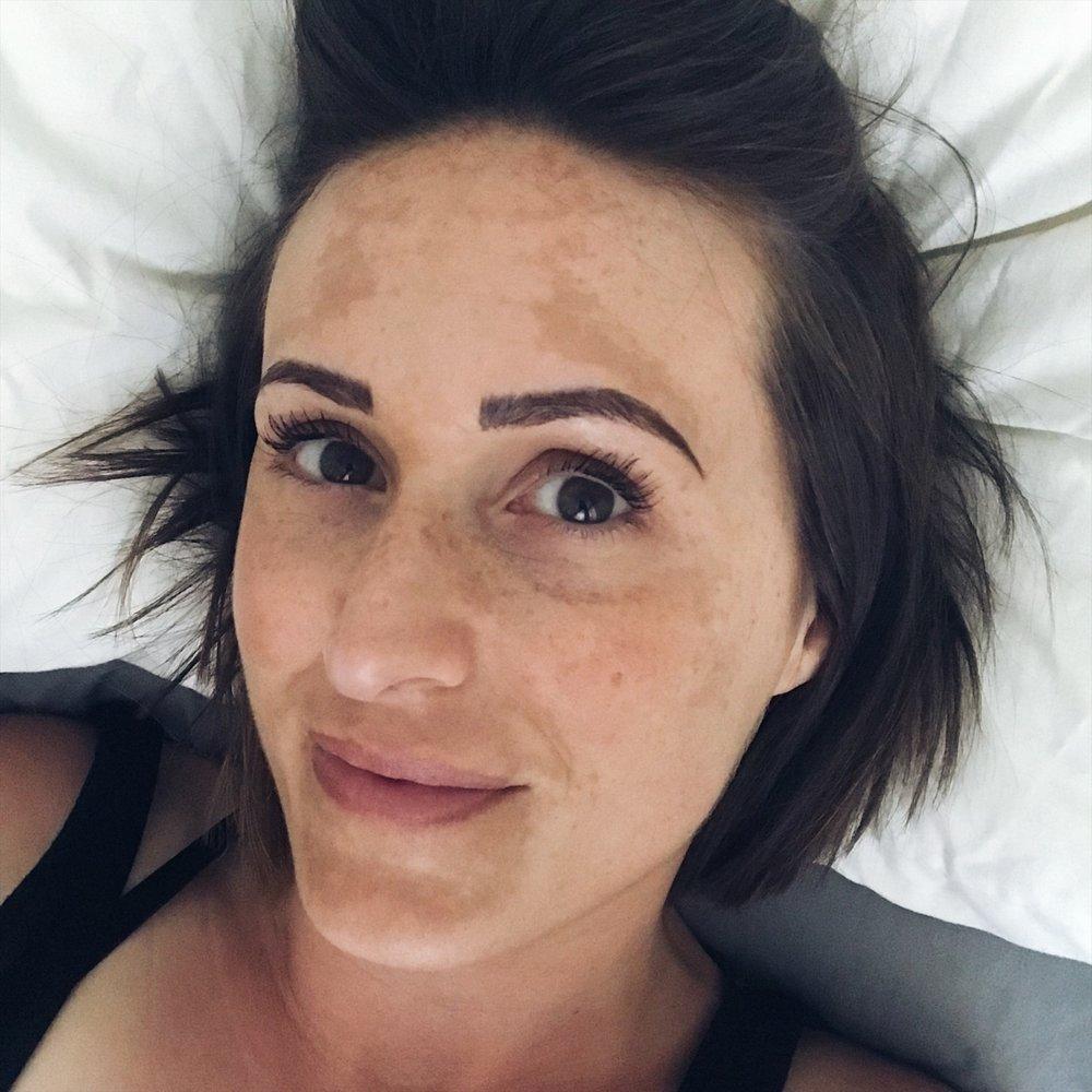 Ruth Ridgeway - Living with melasma