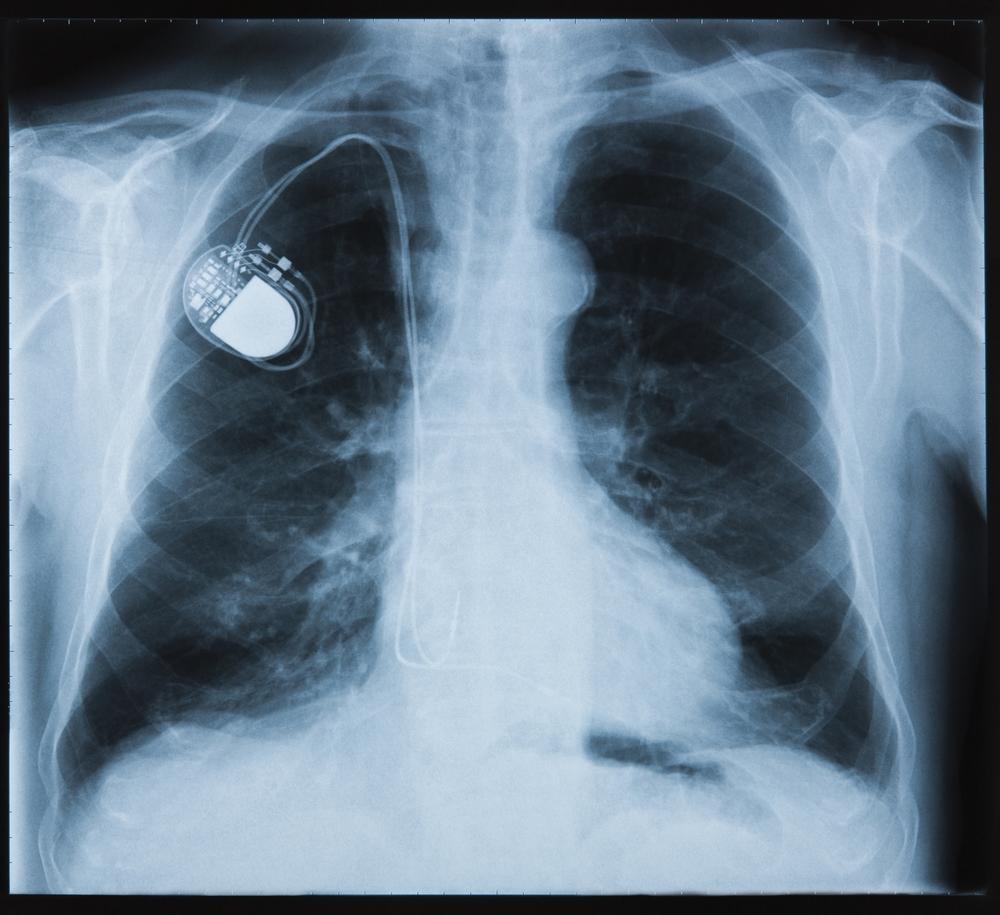 medical implant.jpg