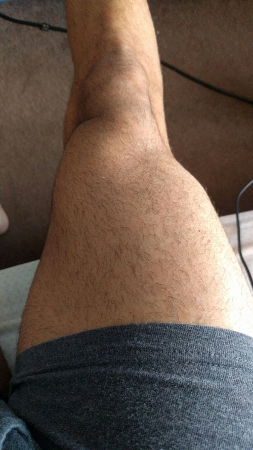 The Kid's right thigh. He's answering your questions on it this week.