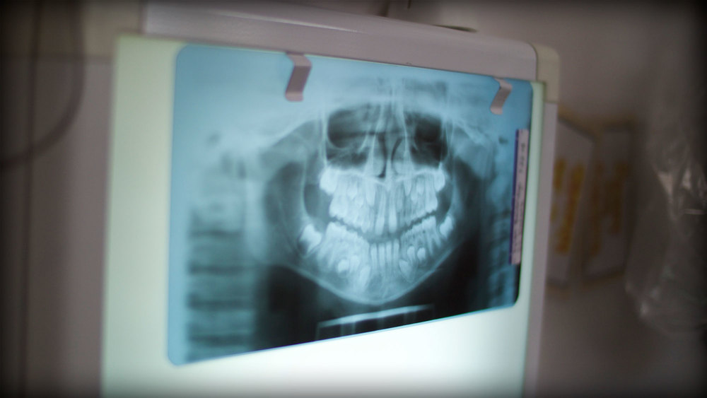 x-rays-01.jpg