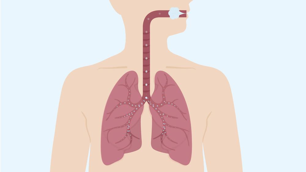 COPD_VO1_120514-19.jpg