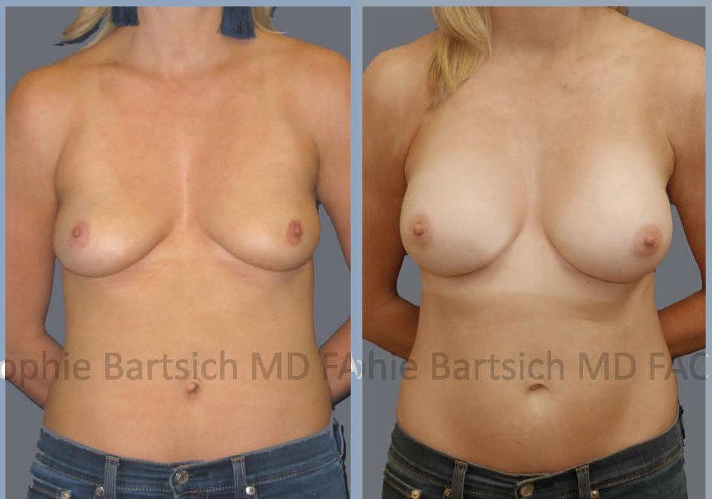 breast desat copy.jpg