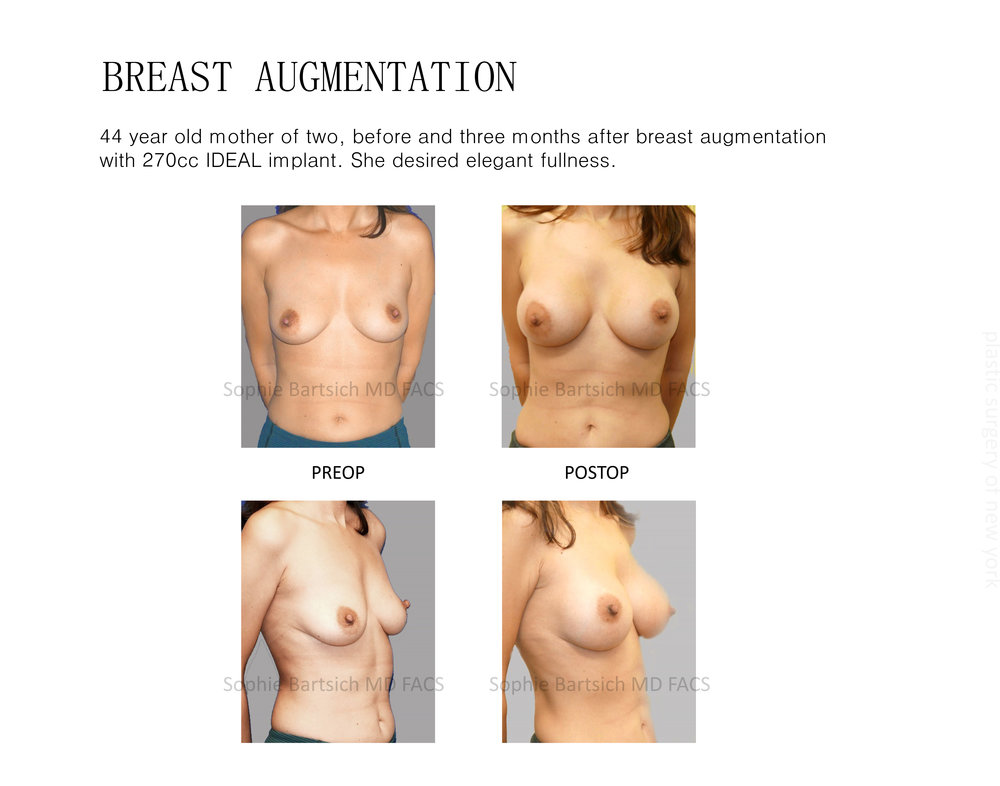 IDEAL implant 1a.jpg