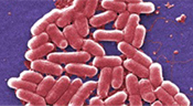 E. Coli bacteria under a microscope (c) Center for Disease Control