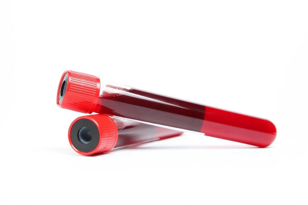 Blood Sample.jpg