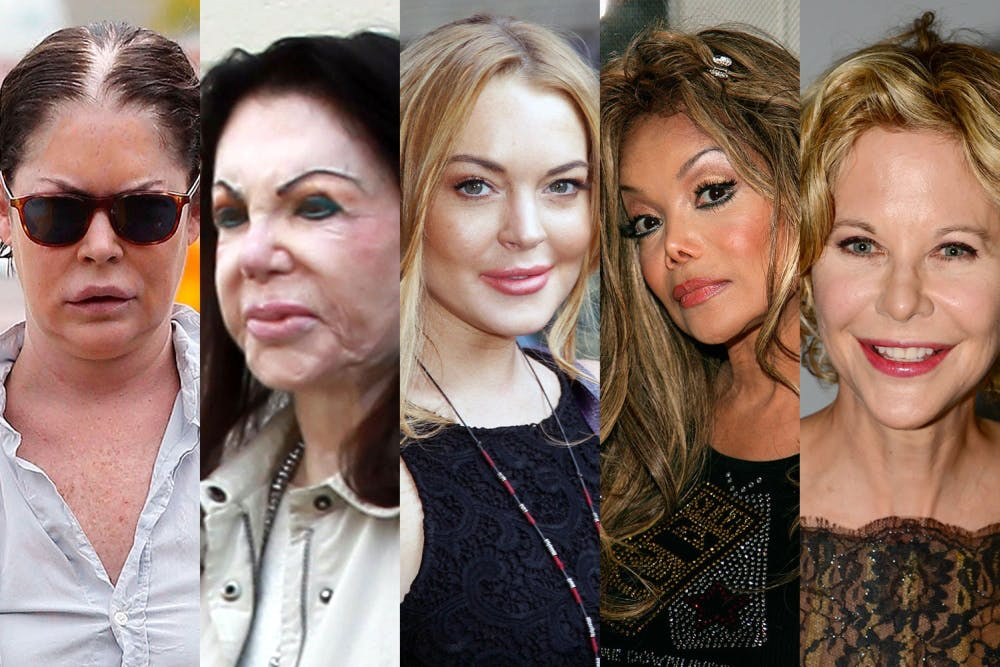 worst plastic surgeries--not as bad.jpg