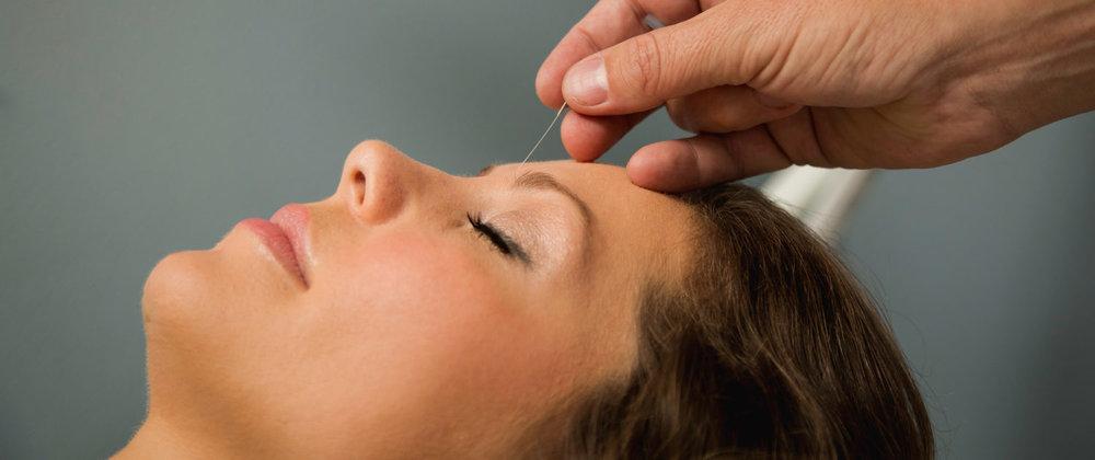 Acupuncture-Bnr-1500x630.jpg