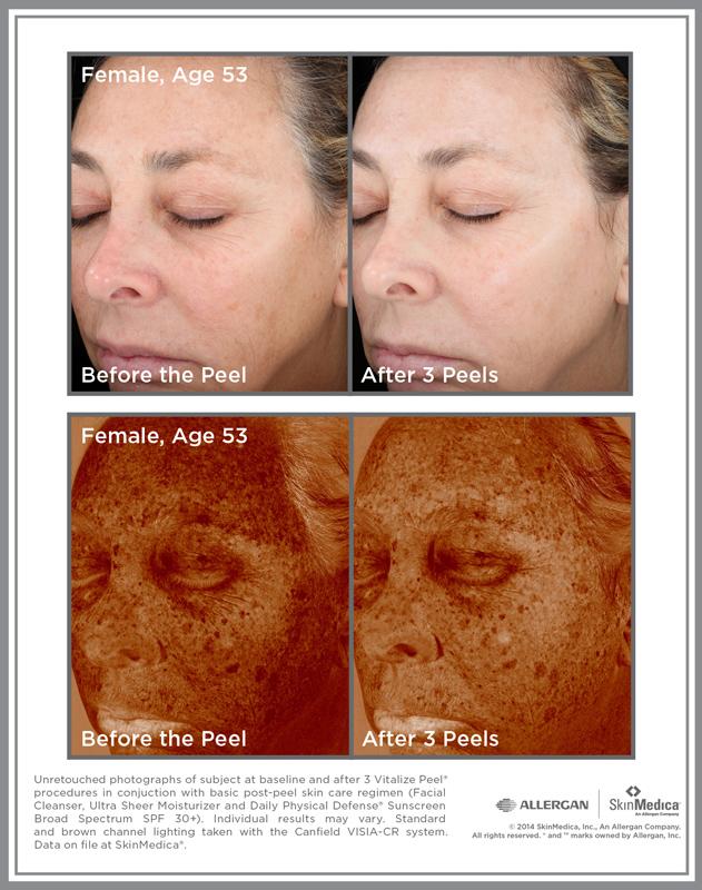 Vit_Peel_CS_Female_Age53-lr.jpg