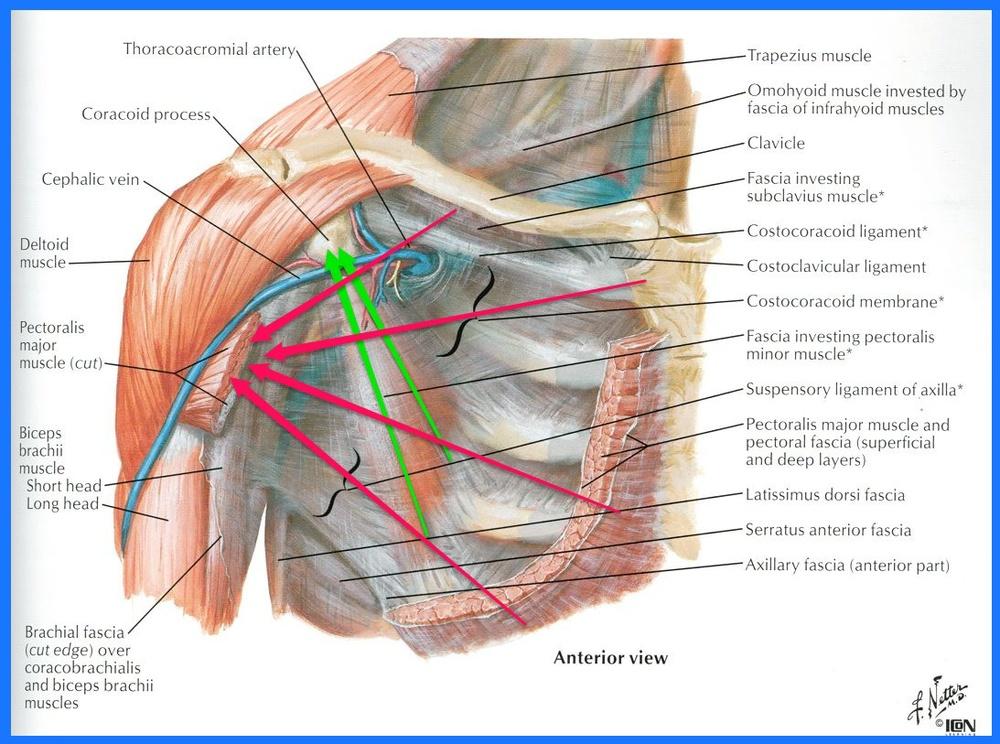 Pectoralis Spasm Due to Poor Posture — Restore353