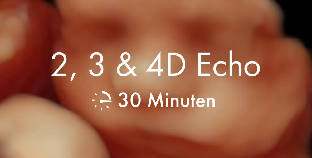 2, 3 en 4D echo, 30 minuten