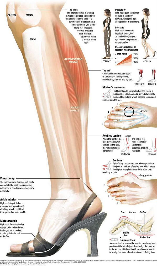 Some of the common conditions that develop as a result of wearing high heels too often.