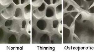 osteoporosis personal trainer Currumbin.jpg