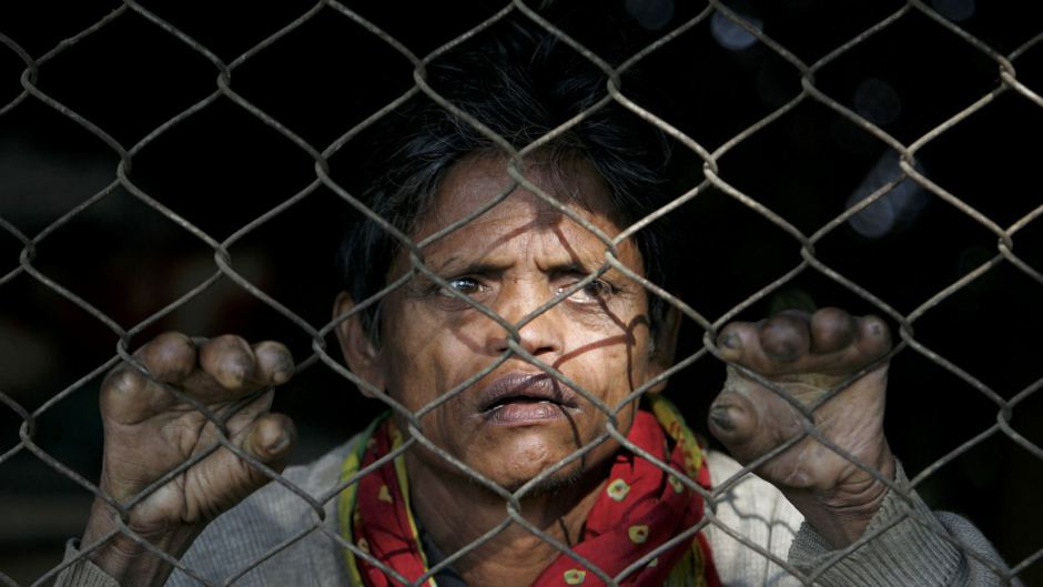 The true count of new leprosy cases in India may be much higher than government estimates. (Reuters/Rupak de Chowdhuri)