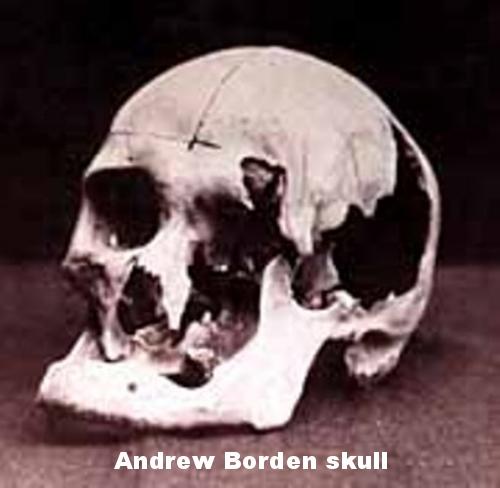Andrew skull.jpg