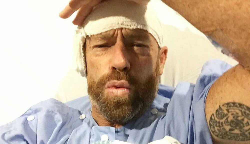 Tom Carroll after his second ear surgery.