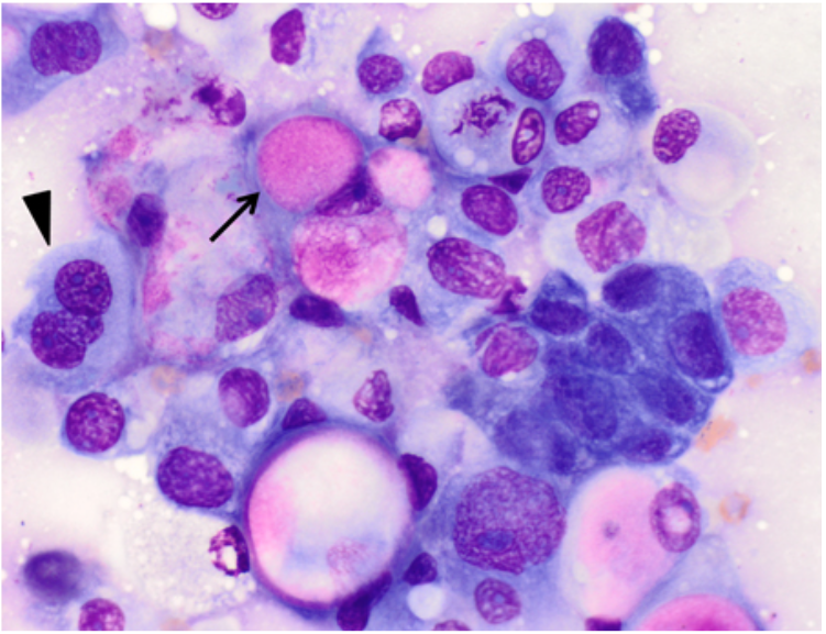An impression smear made from a biopsy piece from a urethral mass in a dog. The sample contains a dense cluster of round to polygonal cells. The cells have varying amounts of pale-blue to more basophilic cytoplasm; pink inclusions are present in a few of the cells (arrow). Note the moderate anisocytosis and anisokaryosis, variable nuclear-cytoplasmic ratio, prominent nucleoli, and trinucleated cell (arrowhead).
