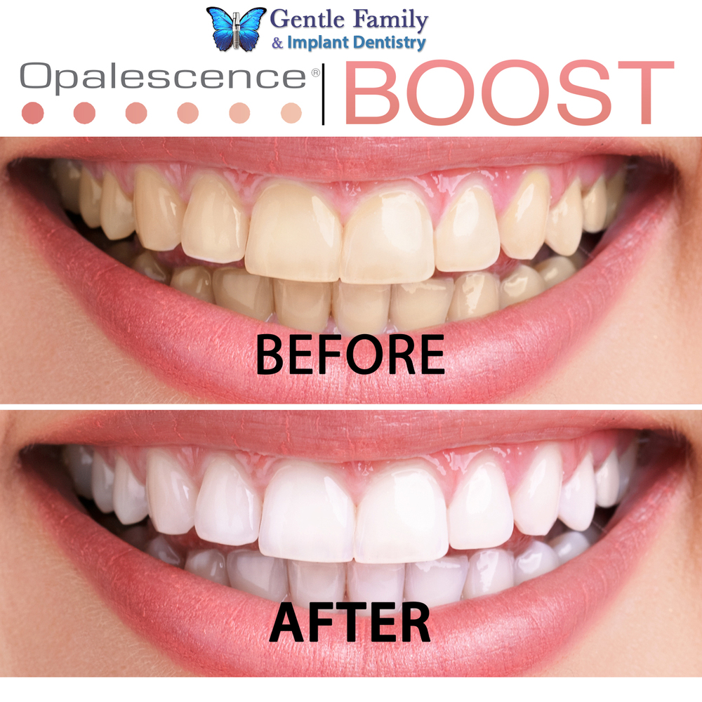 opalescence tooth whitening system instructions