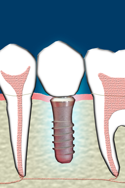 Implant 2.jpg