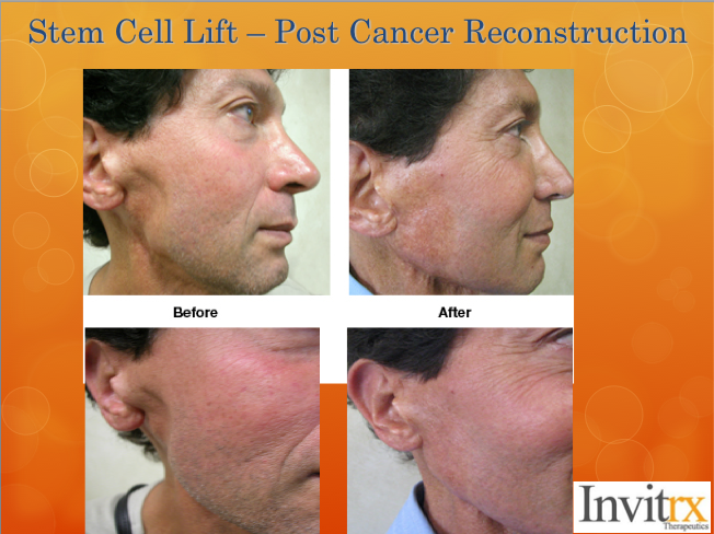 How Does it Work: The non-surgical stem cell treatment option