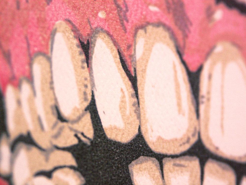 #molarsupport