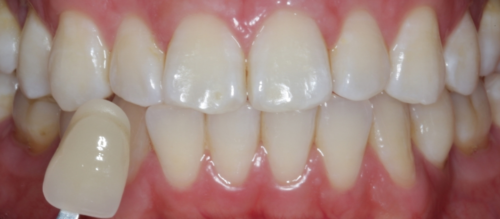 Before I started the whitening.