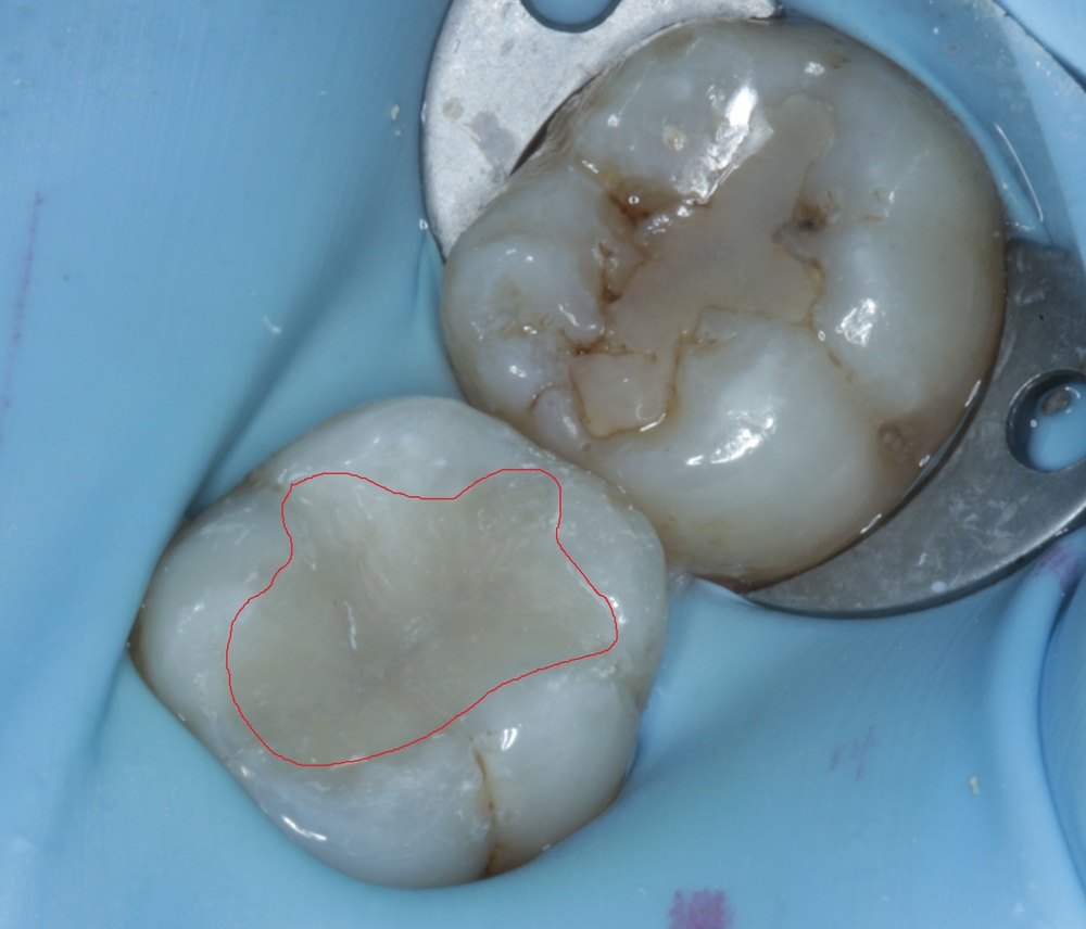 This is the tooth with the new filling. I had removed all the decay and amalgam. The filling is also shaped to be more like a natural tooth, for better chewing efficiency and aesthetics.